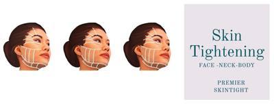 Premier Fibroblast/Skintight in San Diego, CA Facial Skin Care & Treatments